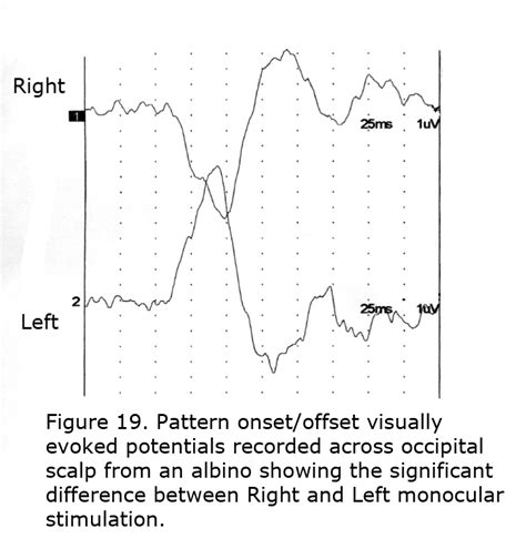 pattern vep visual and auditory anomalies associated with albinism by