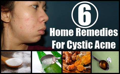 home remedies treatments cure for cystic acne