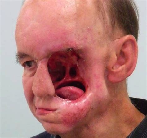 nose cancer who lost his to nose cancer gets his back