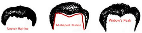 types of hairlines forehead face reading shapes types of hairlines lines