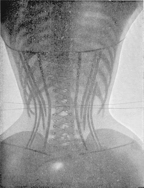Detoxing After X Rays by Corset Pictures X Rays Of Before And After Make Us