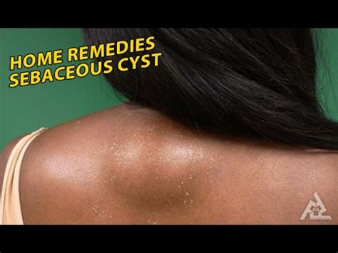 home remedies for sebaceous cyst best health and