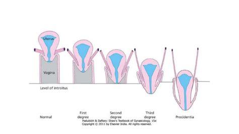 rectocele diagram pelvic organ prolapse gynaecology ppt