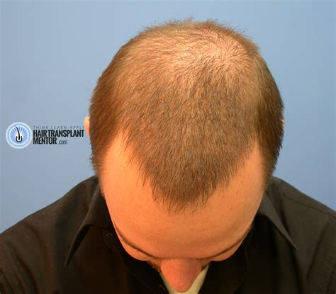 hair style temple bald spots looking for hair transplant repair results