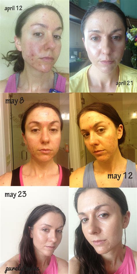 Detox Before And After Skin by Pulling Acne Before And After