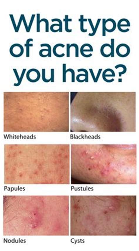 Regular Acne acne