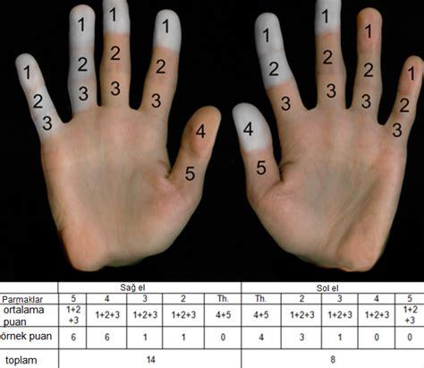 beyaz parmak hastaligi nedir motorcu kadin