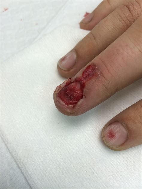 nail bed laceration nailbed injuries part i closing the gap