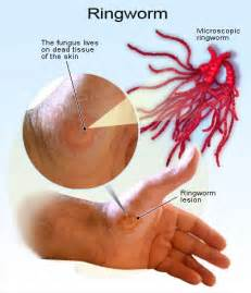 cure for ringworm how to cure ringworm naturally