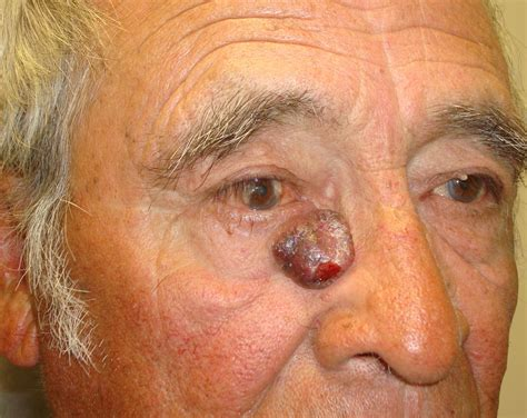 eyelid tumor eye cancer beverly orbital surgery center