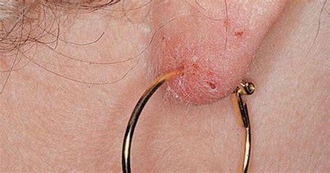 alimenti contenenti nickel allergia al nichel non una questione di pelle
