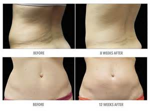 coolsculpting at home coolsculpting 174 sydney non surgical removal
