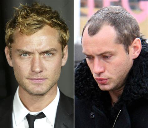 young male celebrities with thinning hair hair today gone tomorrow balding celebrities slide 1