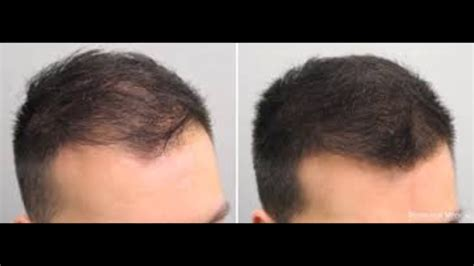 before snd after picture of hair growth in eonen rosemary oil hair loss before and after youtube
