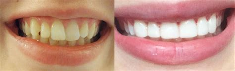 how to get instant teeth without braces veneers