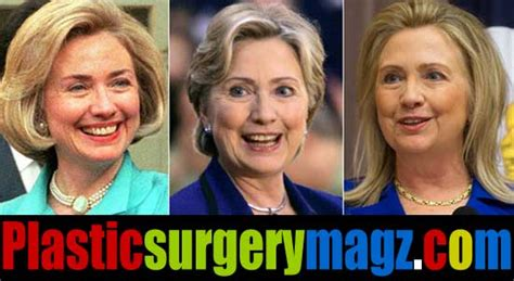 did hillary clinton have plastic surgery 2015 unlikeable hillary clinton facelift is finally revealed