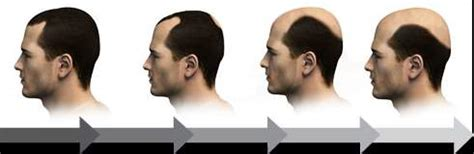 hair transplant cost in tianjin china hair transplantation iran hair restoration clinic cheap