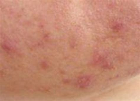 Rosacea Detox by 33 Best Images About Rosacea On Fish Skin