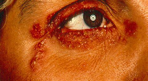 wann bricht herpes nach ansteckung aus krankheitsbilder nach organen