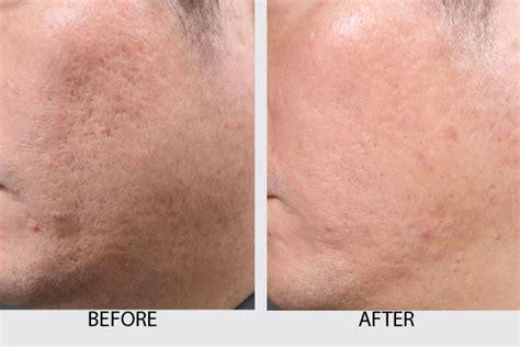 intracel pic2 dr kamil al rustom skin amp laser centre