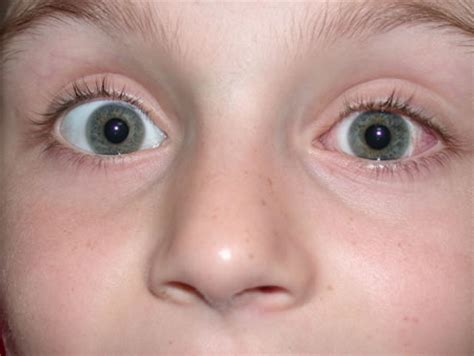 squinting one eye eye surgery squint