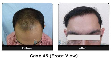 hair transplant calculator hair transplant photo gallery dezire clinic