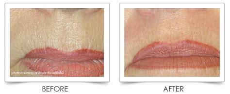 genesys after hours laser genesis laser treatment for scars large pores