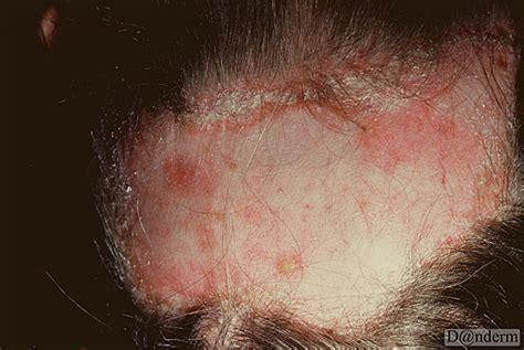 discoid lupus erythematosus   scalp