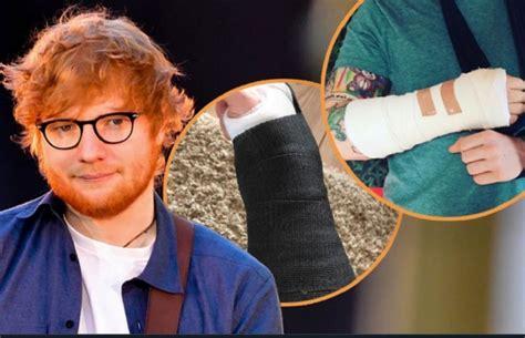 ed sheeran hand ed sheeran broke his both hands postponed concerts in