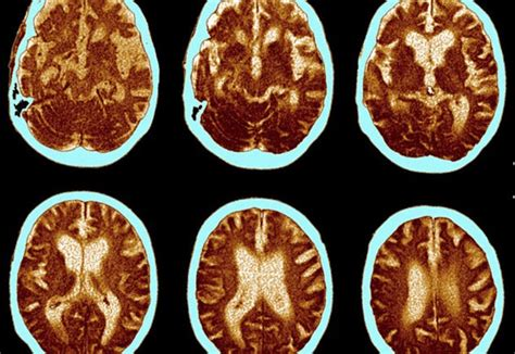 May Had A Brain by Could A Vitamin Drink Help Prevent Alzheimer S Daily