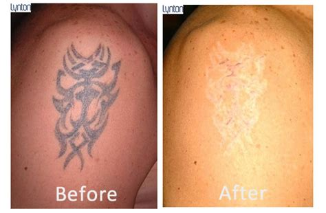 laser removed tattoos before and after laser removal blackpool the fylde clinic