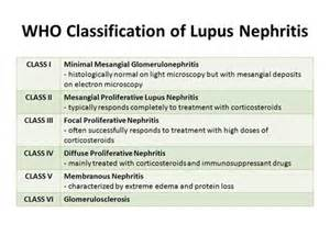 Classification Essay Sle by Who Classification Of Lupus Nephritis Ppt