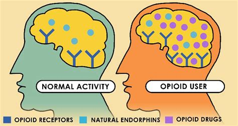 Opioid Also Search For This Is Your Brain On Opioids
