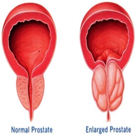 top 5 herbal remedies for prostatitis treatment