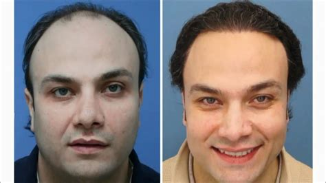 prescreened hair transplant physicians do hair transplants work award winning surgeons youtube