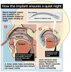 how you can beat snoring for good daily mail online win the snore wars with titanium tulip implant up your