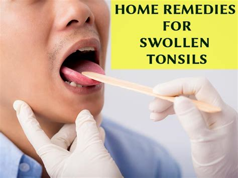 7 most effective home remedies for swollen tonsils