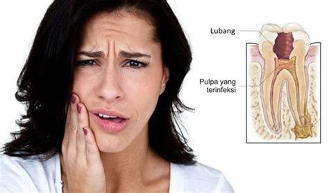 Untuk Pemutihan Gigi gigi berlubang lebih baik di cabut atau di tambal dental