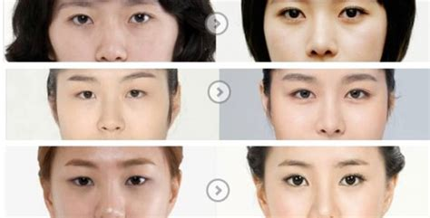 6 before and after korean surgery pictures seoul