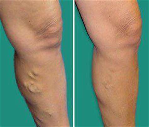 vene varicose interne pour vos varices les secrets de l alo 233 vera
