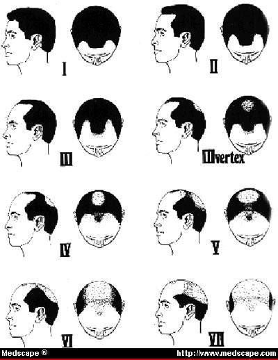 pattern baldness types question jetcareers