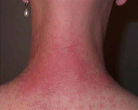 tattoo hives treatment pin henna mandala design 2 tattoo hawaii dermatology on
