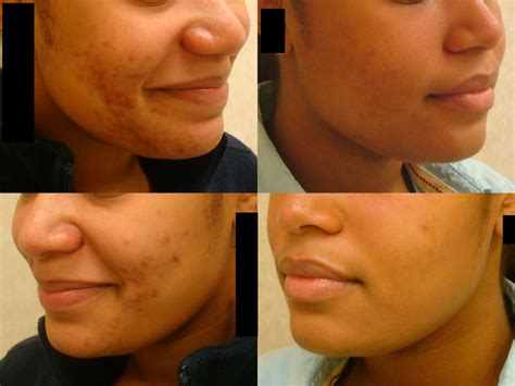 Skincare For The Treatment Of Acne by Acne Treatment Fairfield Dermatology