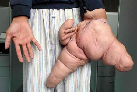 largest pube record 10 most extreme body parts oddee
