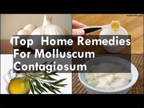 molluscum contagiosum buzzpls