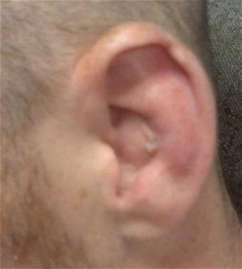 cauliflower ear how to get rid of cauliflower ear