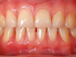 what color are your gums supposed to be e cigarettes just as harmful as tobacco for health