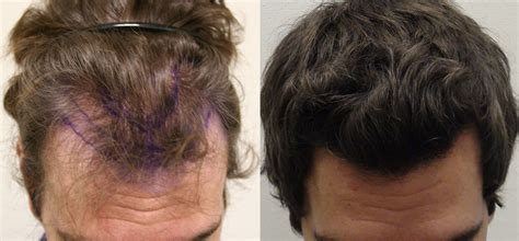 hair transplants 1000 graft coverage going head to head with hair loss treatments and