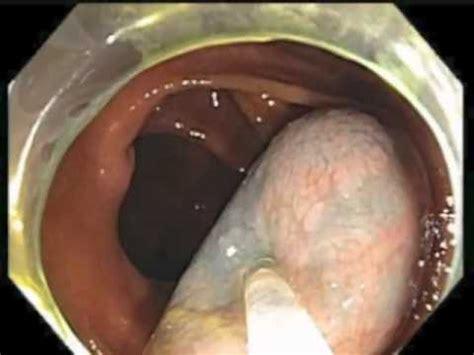 Mucus Stool Cancer by Colonoscopy Channel Subtle Lesion Hiding A Mucus
