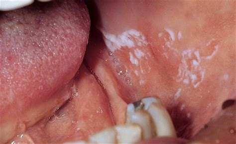 fibroma white raised spot on inner lip what causes mouth sores canker sores gum sores aspen